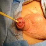 Hipospadias una enfermedad del pene…