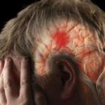 Señales las cuales indican que puedes sufrir un derrame cerebral…