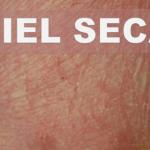 Cuidados para la piel seca de la cara…