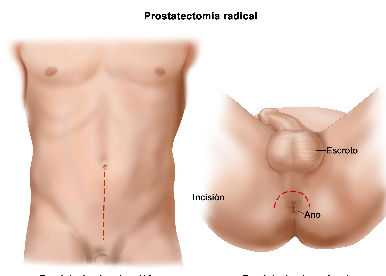 dolor perineal y archivos